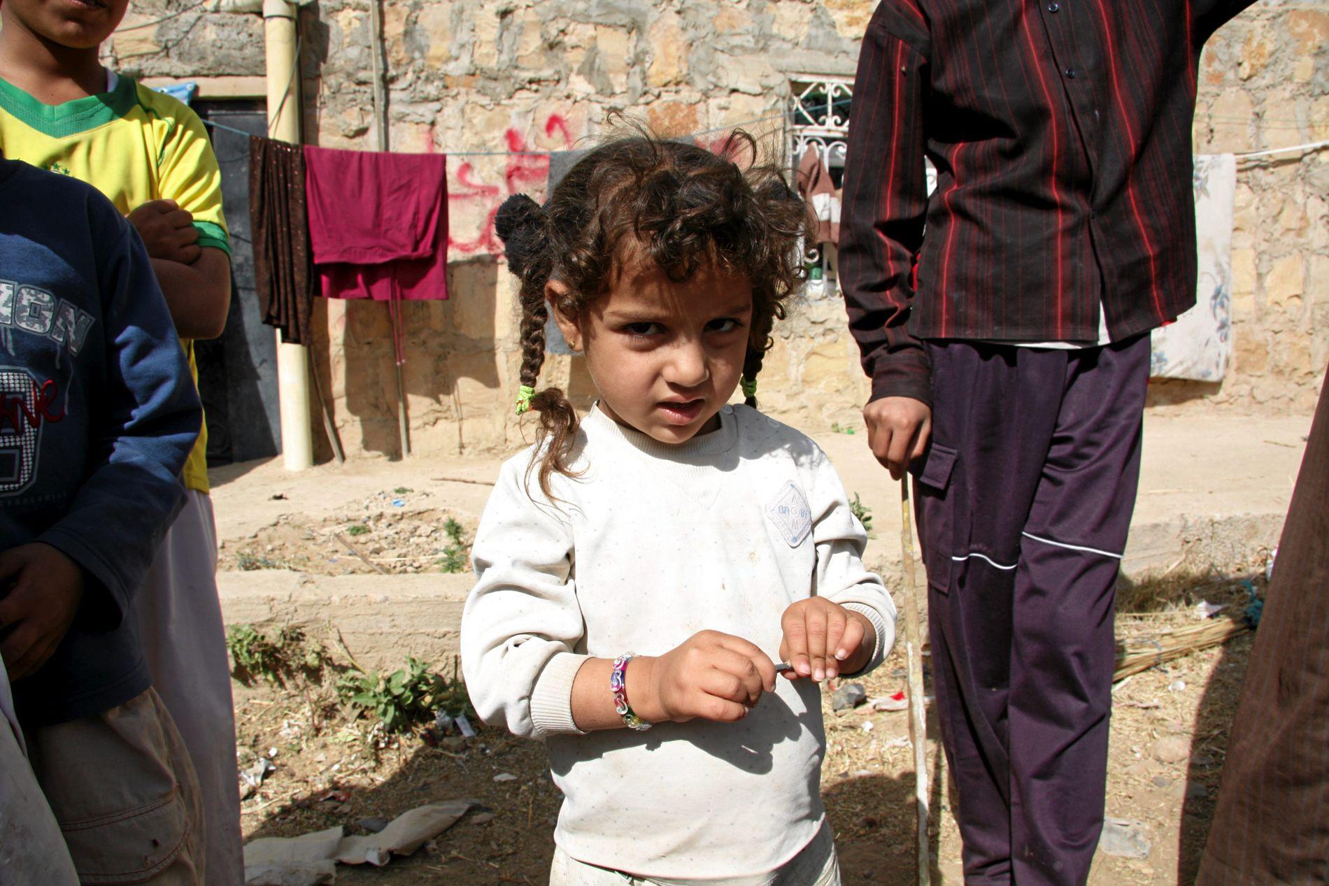 HARDT RAMMET: Krigen i Jemen er brutal, og rammer spesielt barn, skriver stortingsrepresentant Gina Barstad (SV). Bashayer (bildet) og familien ble drevet bort fra huset sitt i landsbyen i landsbyen Domaid nord for Sa'dah by.