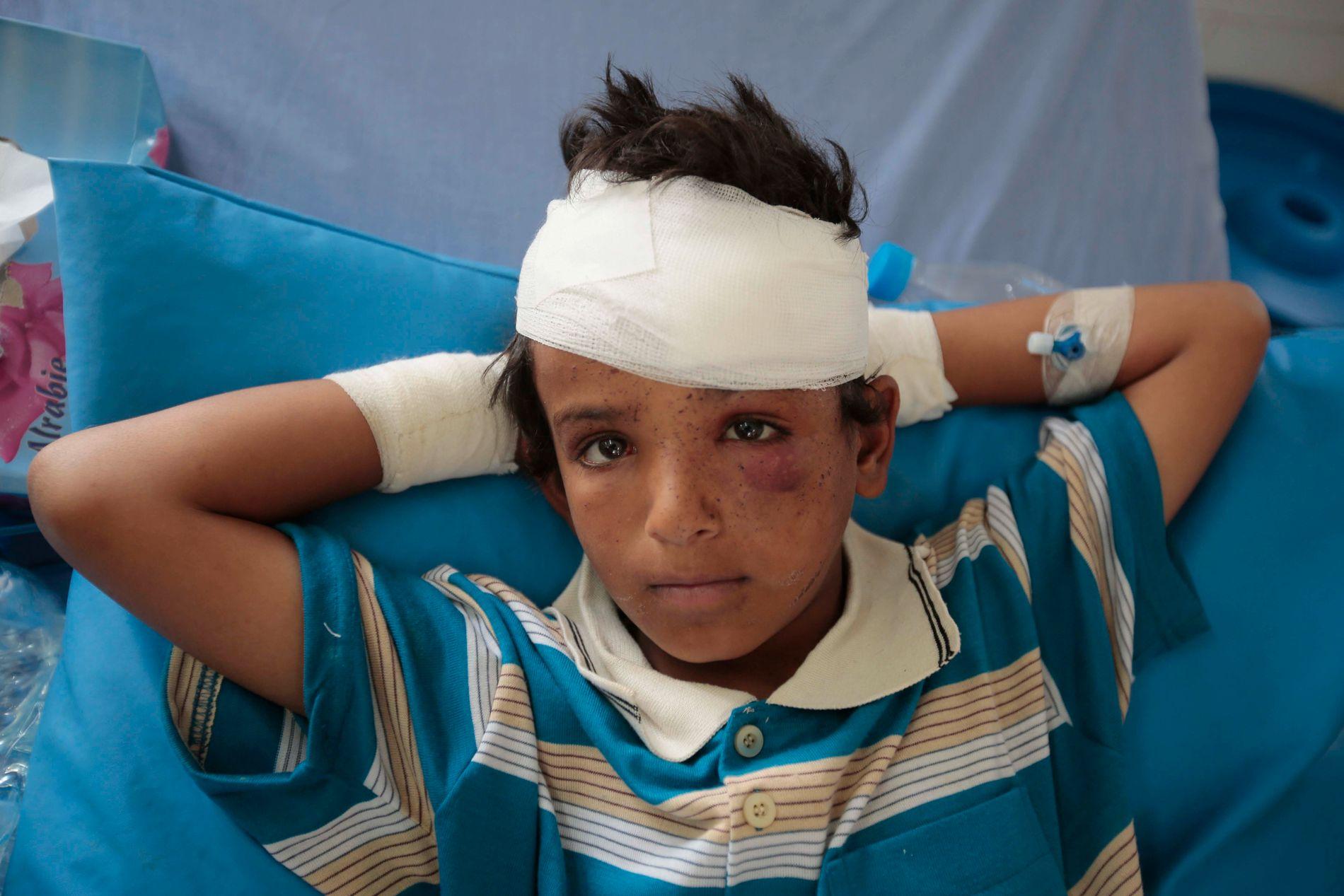 USKULDIG: Titusenvis av sivile, som denne guten på eit sjukehus i Saada, har blitt offer for bomber frå flya til den Saudi-leia koalisjonen sidan krigen i Jemen byrja i 2015.