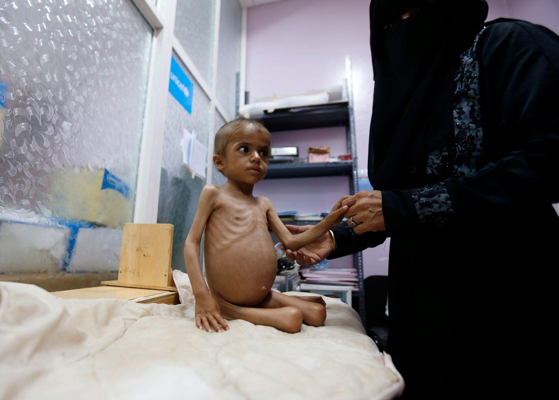 JEMEN: Matmangel tek liv i Jemen, etter tre år med krig og isolasjon. Verdssamfunnet bør leggje press på partane for å få slutt på borgarkrigen, skriv BT på leiarplass.