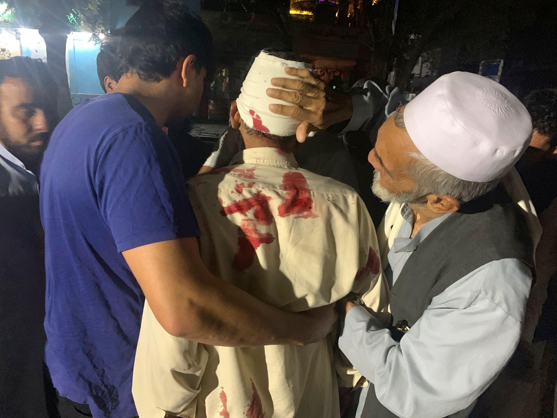 En strøm av sårede ankom mandag kveld sykehus i Kabul, etter at en kraftig bilbombe eksploderte øst i den afghanske hovedstaden. Taliban har tatt på seg ansvaret for angrepet. Foto: AP / NTB scanpix