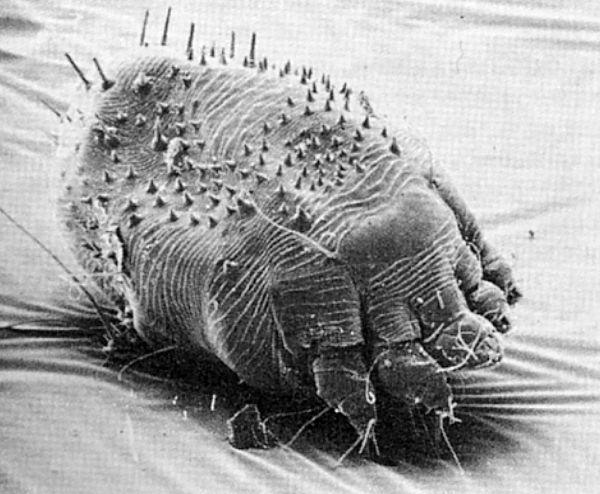 SKABBMIDD: Når skabbmidden graver seg under huden og legger egg oppstår det plagsom kløe.