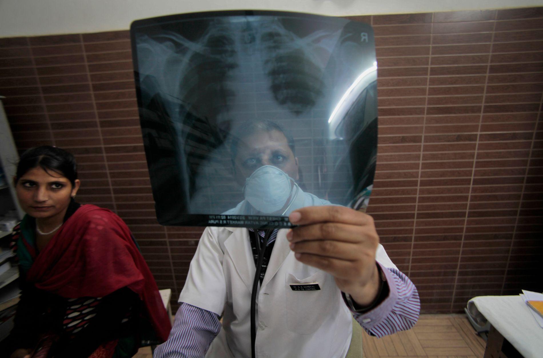 RAMMER LUNGENE: Tuberkulose, tidligere kjent som tæring, er en sjelden sykdom i Norge, men den er fortsatt et stort problem i utviklingsland. I India tar den rundt 300.000 liv hvert år. På bildet ser en indisk lege nærmere på et røntgenbilde av en smittet pasient.