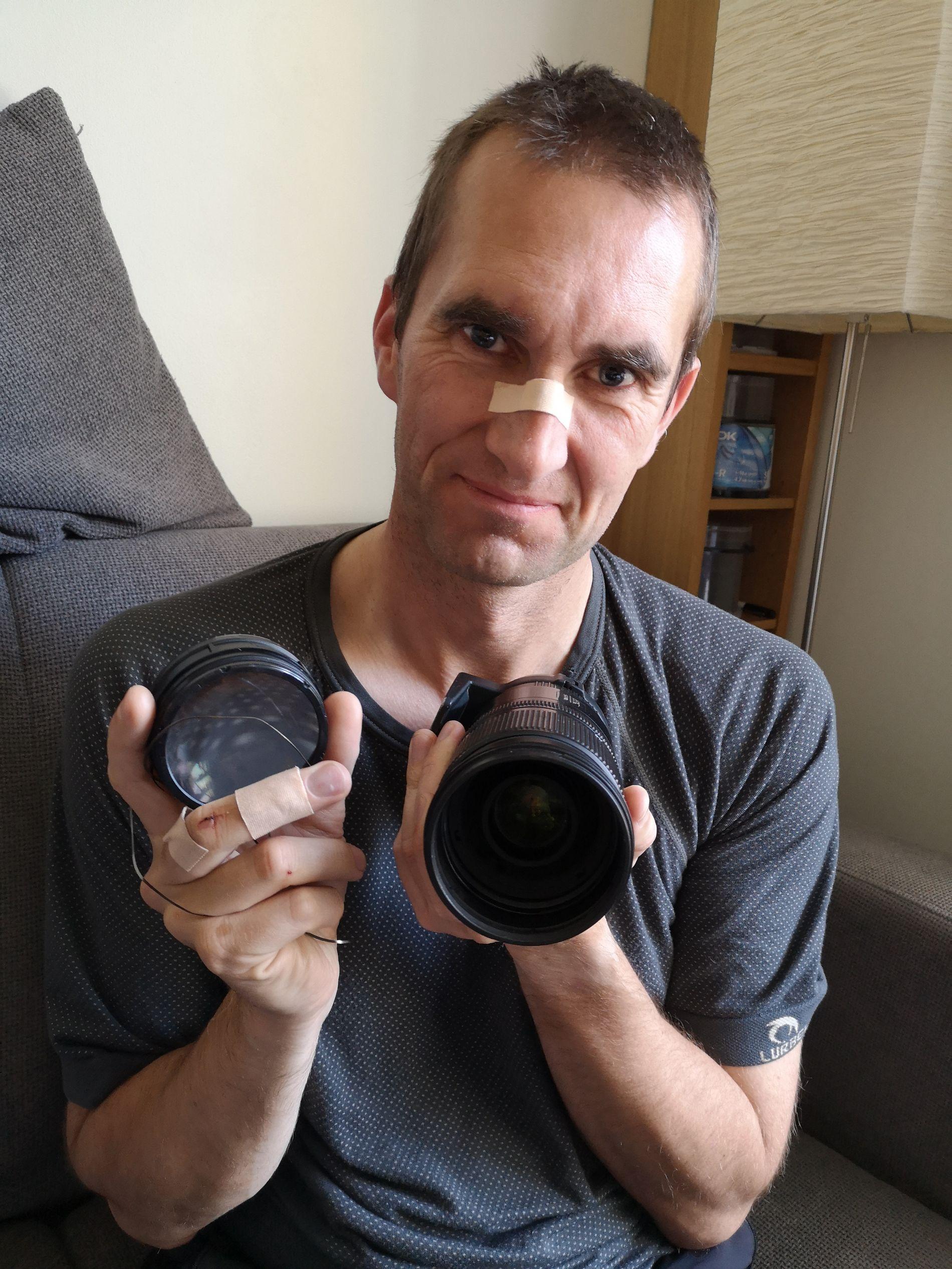 Thomas Karlsen med en forslått nese og plastret langfinger viser frem kamerautstyret som ble ødelagt da David Akintola plutselig kolliderte med ham i høy fart.